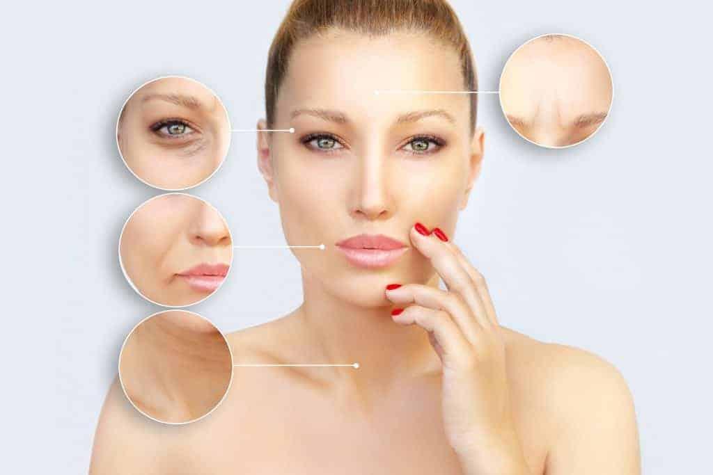 Injeksjonsområder for botox