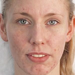 Kvinne før Green Peel behandling