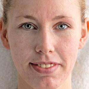 Kvinne etter Green Peel behandling